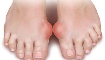 Bệnh Gút (Gout, thống phong)
